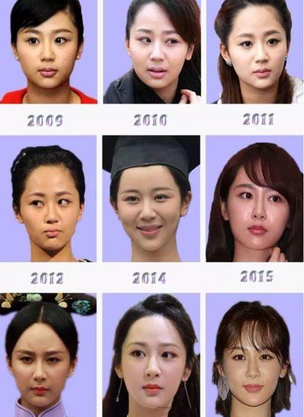 杨紫整容了吗   09年至18年杨紫的颜值变化非常的明显